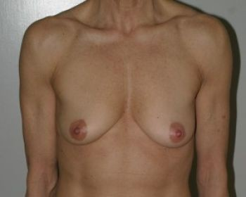 Breast Revision - Before & After - Dr. Placik