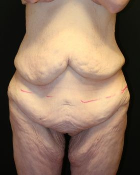 Thigh Lift - Before & After - Dr. Placik