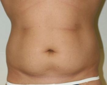 Male Liposuction in Chicago