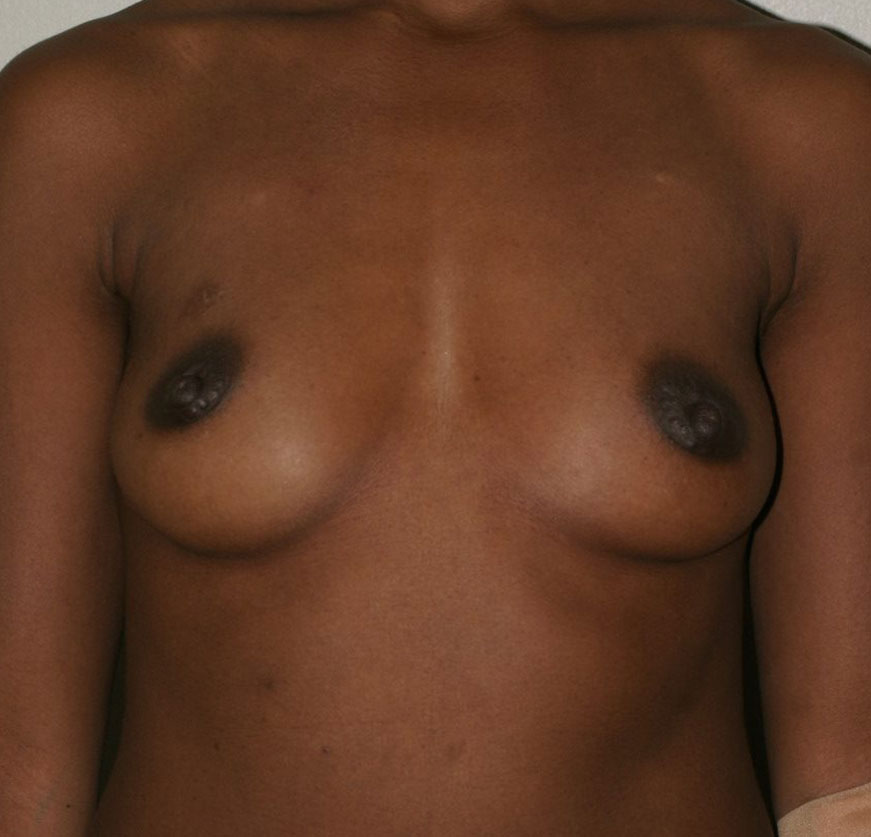 Breast Augmentation - Before & After - Dr. Placik