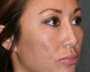 Non-Surgical Rhinoplasty - Before & After - Dr. Placik