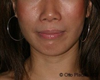 Buccal Fat Extraction - Before & After - Dr. Placik