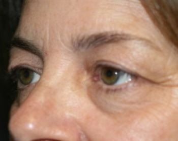 Eyelid Surgery - Before & After - Dr. Placik