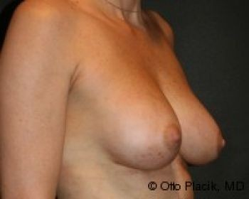 Breast Augmentation with Fat Grafting Chicago