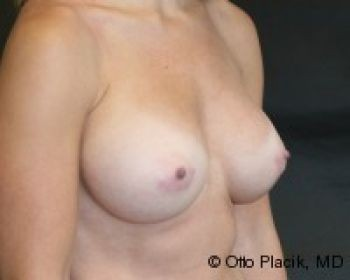 Breast Revision Chicago