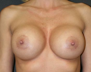 Breast Implant Exchange - Before & After - Dr. Placik