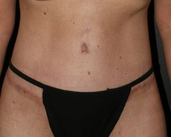 Tummy Tuck - Before & After - Dr. Placik