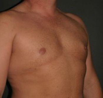 Male Breast Reduction - Before & After - Dr. Placik