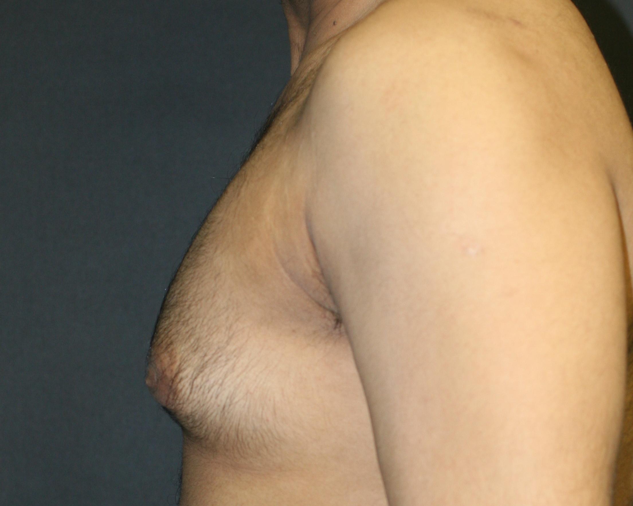 Gynecomastia utilizing excision & liposuction