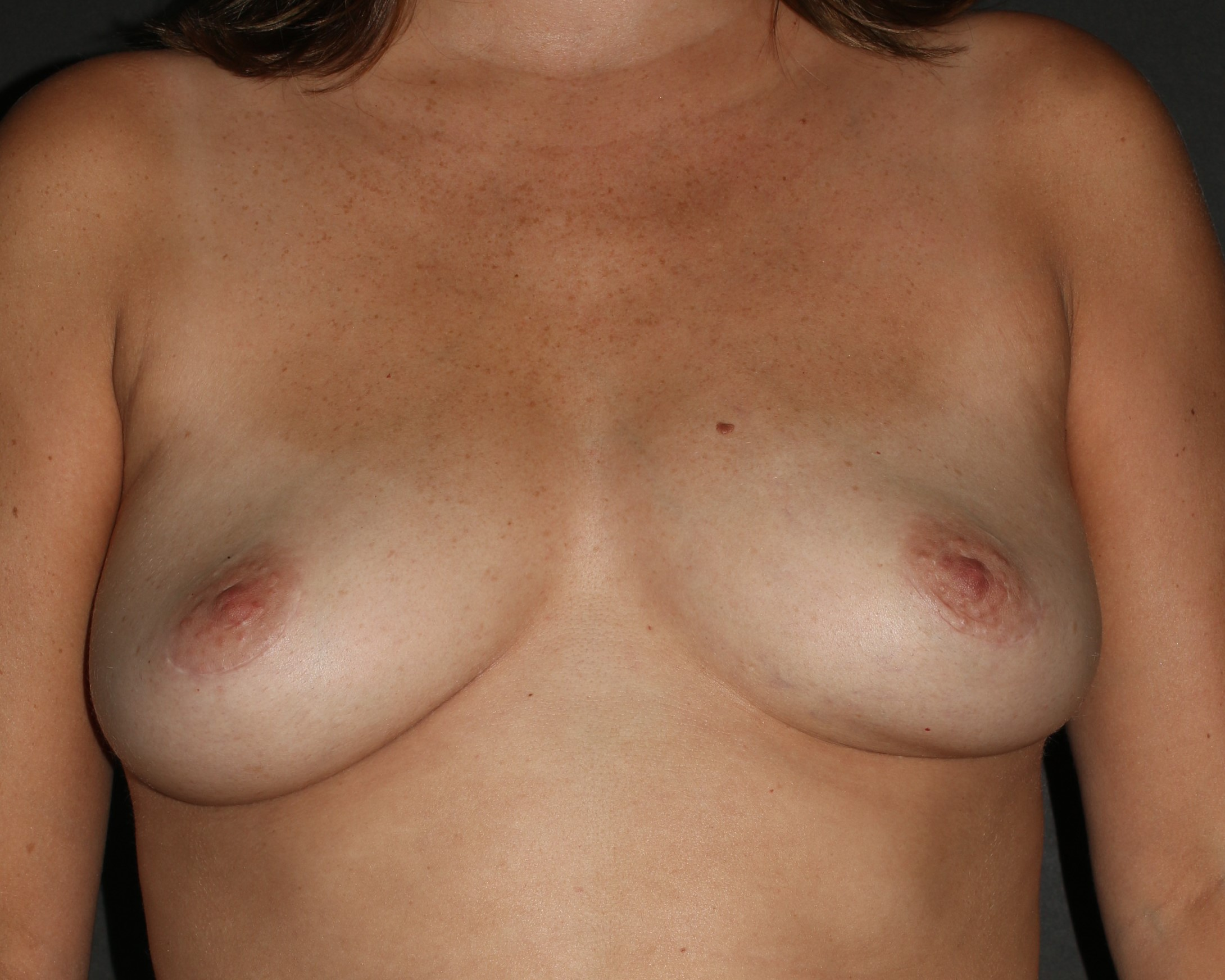 Breast Implant Removal - Before & After - Dr. Placik