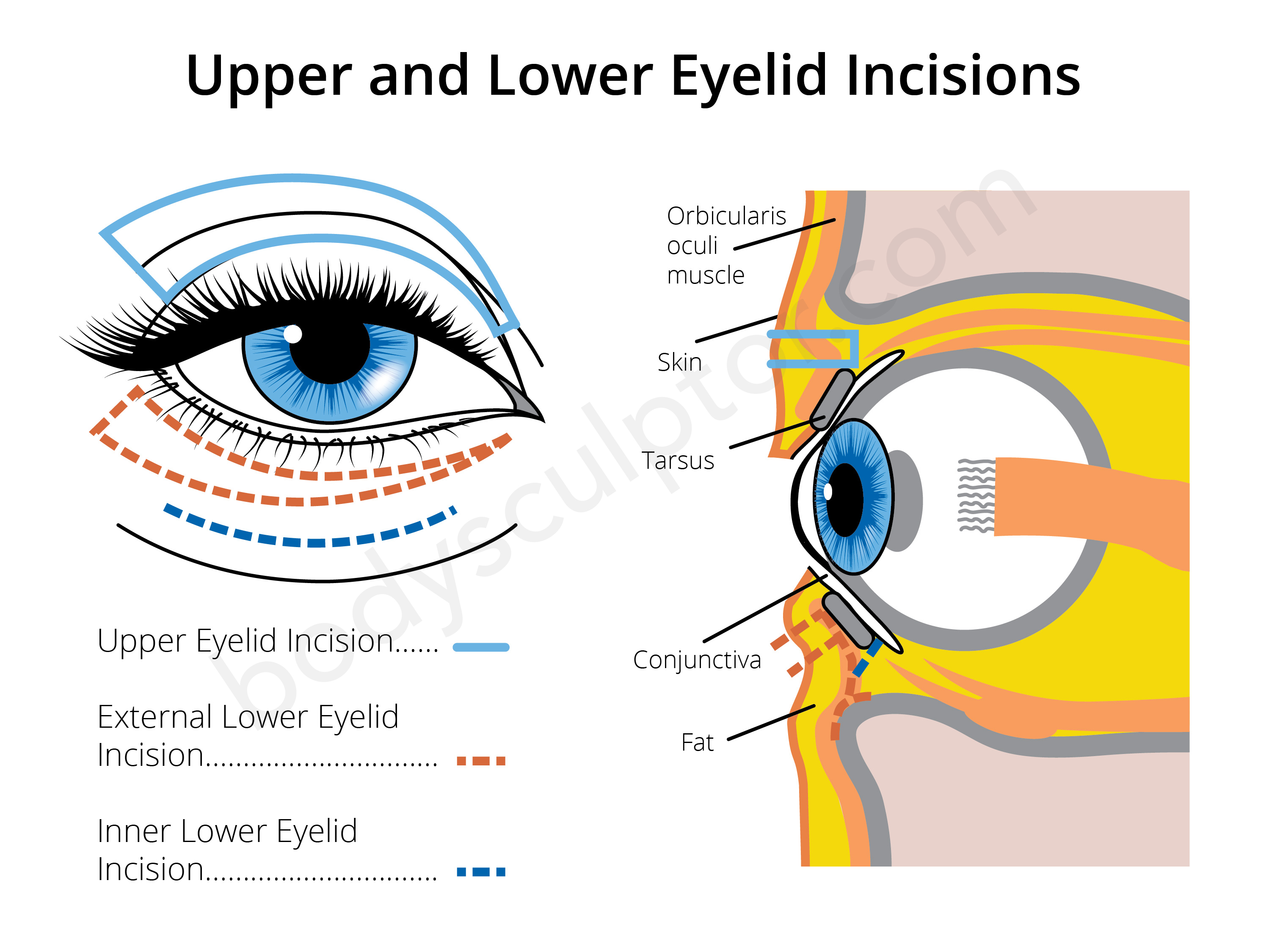 Eyelid Surgery Incisions