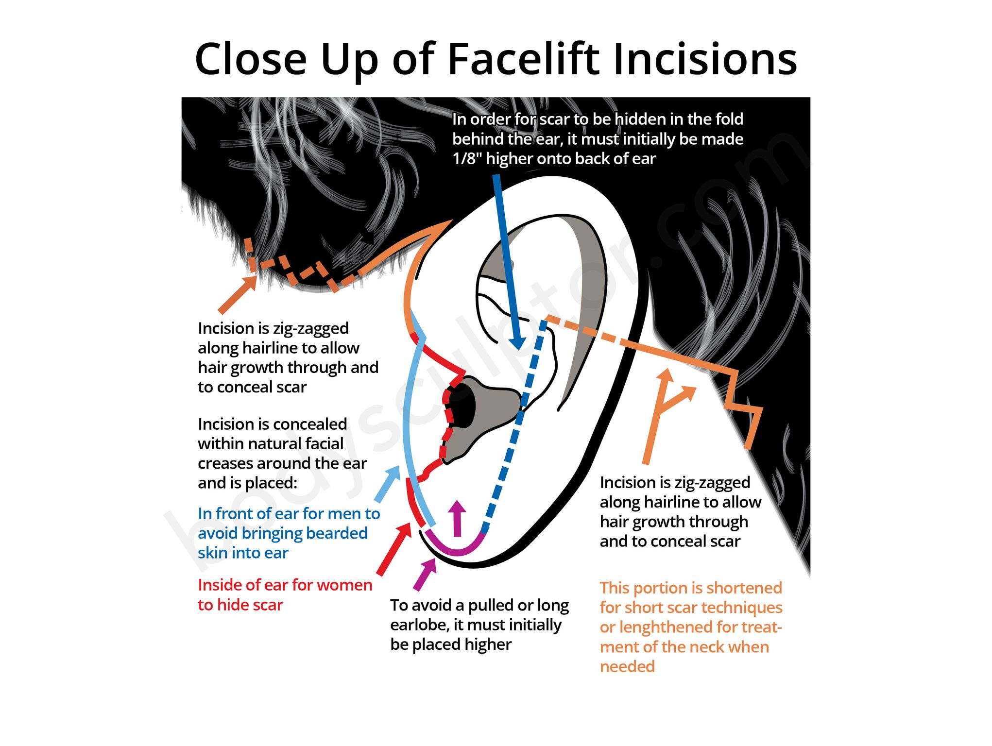 Chicago Facelift Incisions Diagram